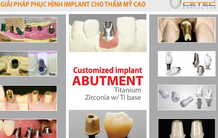 Giải pháp phục hình Implant cho thẩm mĩ cao