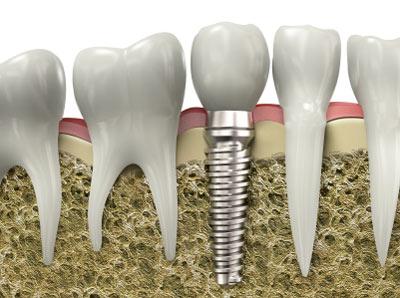 Phục hình trên Implant
