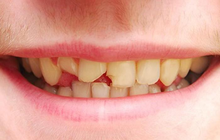 Chấn Thương Răng: Tôi Nên Làm Gì?