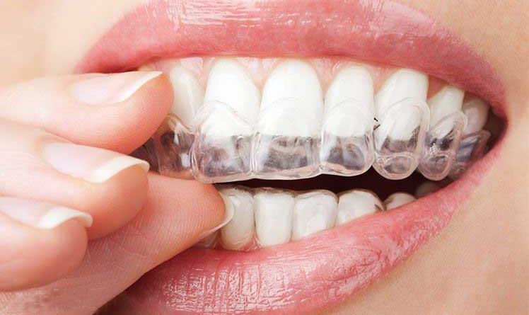 7 sự thật về tẩy trắng răng