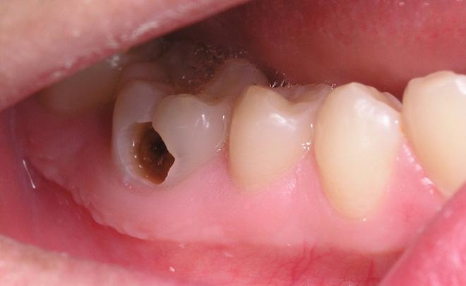 Mẹo giảm đau răng tại nhà không cần thuốc