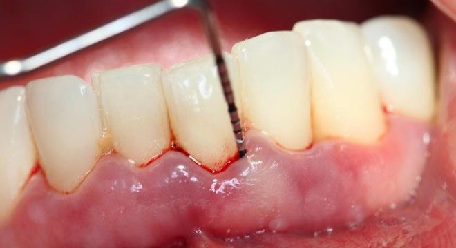 Căn bệnh dễ gây… rụng răng nhiều người mắc mà không để ý