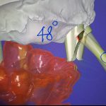 Customized Abutment CAD/CAM nghiêng góc 50 độ